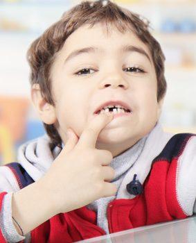 Dieci modi creativi per far cadere il dentino che dondola